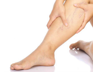 Cauzele durerii severe a coapsei exterioare